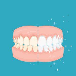 Ästhetische Zahnheilkunde Zahnarzt Bohlenplatz