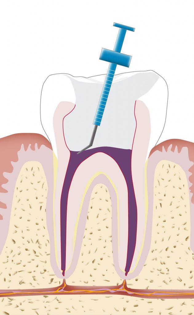 Zahnarzt Erlangen Wurzelbehandlung