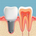 Zahnarzt Erlangen Implantologie