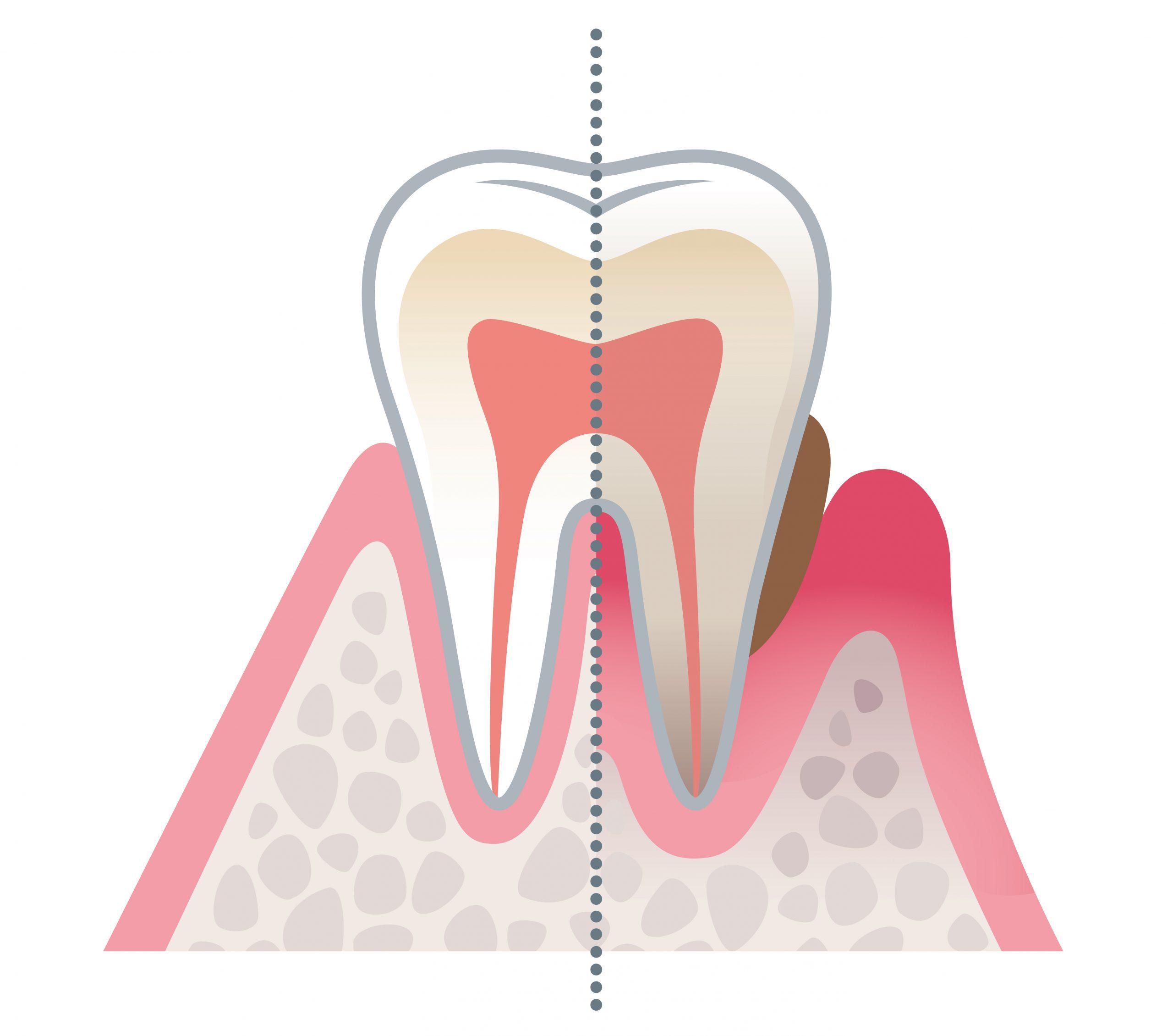 Zahnarzt Erlangen Paradontologie