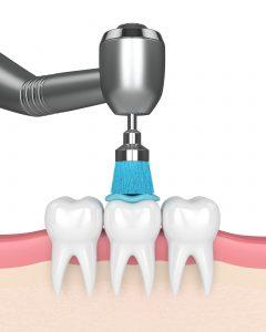 Zahnreinigung Zahnarzt Ziebarth Erlangen